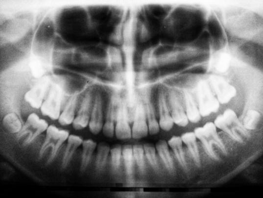 Radiografie digitală vs. radiografie clasică în stomatologie